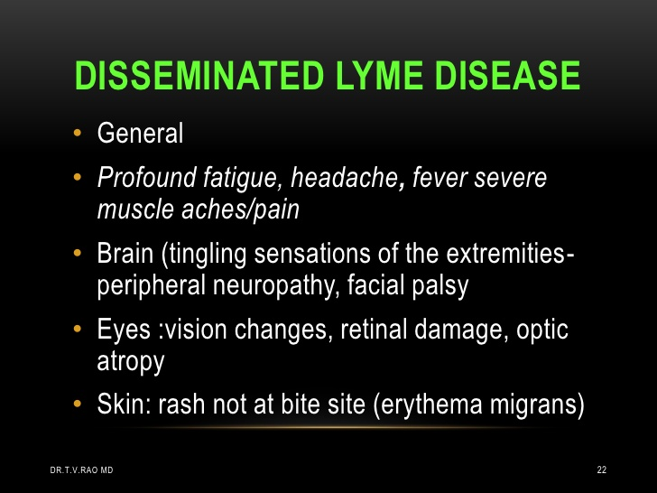 lymes disease essay Should chronic lyme disease be treated with long term antibiotics euctr2009-010939-40-nl is an antibiotic gel on a tick bite an effective way of preventing lyme disease.