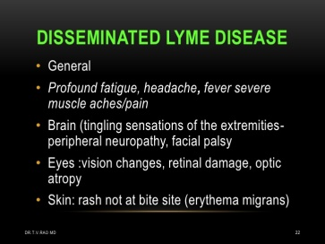 lyme-disease-borrelia-22-728